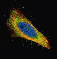 Confocal immunofluorescence analysis of paraformaldehyde-fixed HeLa using Filamin B antibody