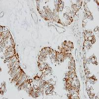 Immunohistochemical analysis of formalin-fixed and paraffin-embedded OVCA xenograft using GPR 164 antibody