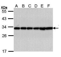 Western Blot analysis of A:A431, B:H1299, C:Hela, D:HepG2, E:Molt-4 whole cell lysate using 14 3 3 beta antibody