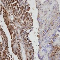 Immunohistochemical analysis of formalin-fixed and paraffin-embedded serous OVCA using VAV1 antibody