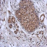 Immunohistochemical analysis of formalin-fixed and paraffin-embedded Breast ca using MURF1 antibody
