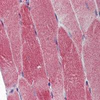 Immunohistochemical analysis of formalin-fixed and paraffin-embedded Skeletal Muscle using DNA Polymerase gamma antibody
