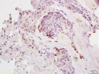 Immunohistochemical staining of human colon carcinoma tissue using SDHD antibody.