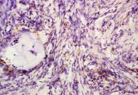 Paraffin-embedded human rectal carcinoma fixed with 4% paraformaldehyde. Antigen retrieval by boiling with citrate buffer. Blocking buffer is goat serum (38 degrees for 20 min.). SATB1 (phospho-Ser47) antibody at 1:200 dilution with overnight incubation a