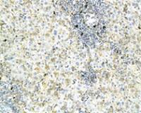 IHC-P of rat liver tissue (orb6918 at 1:200)