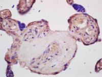 Immunohistochemical analysis of formalin-fixed and paraffin embedded human placenta tissue using SLC40A1 antibody (antibody dilution at:1:200)