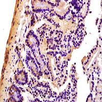 Immunohistochemical analysis of formalin-fixed and paraffin embedded mouse colon tissue (Dilution at:1:200) using S100A8 antibody